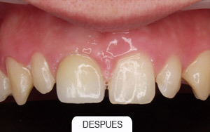 implantes dentales. caso unico