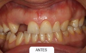 implantes dentales. puente de 2 piezas