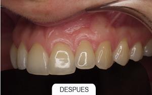 implantes dentales. rehabilitaciones complejas